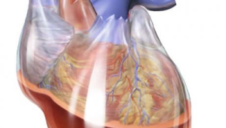 Tamponada cardiaca